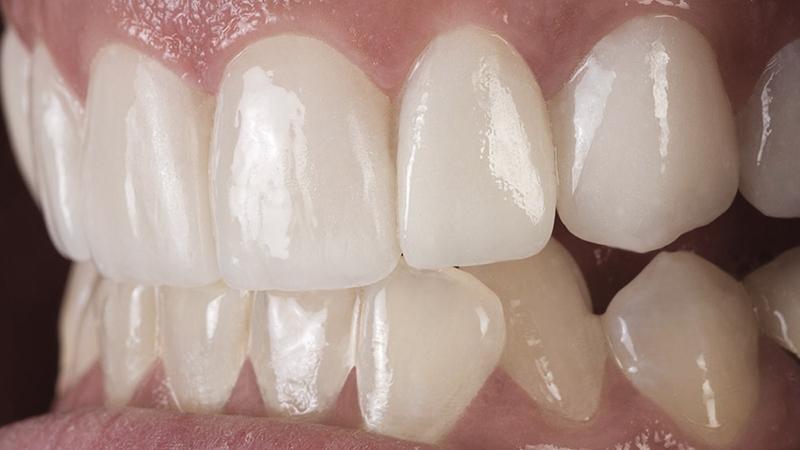 claramento lentes de contato dentais