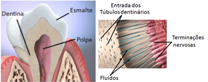 o que causa sensilidade nos dentes ?