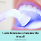 clareamento_dental_Flavio_Ferraz