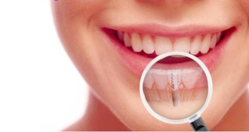 implante_dentario_Flavio_Ferraz