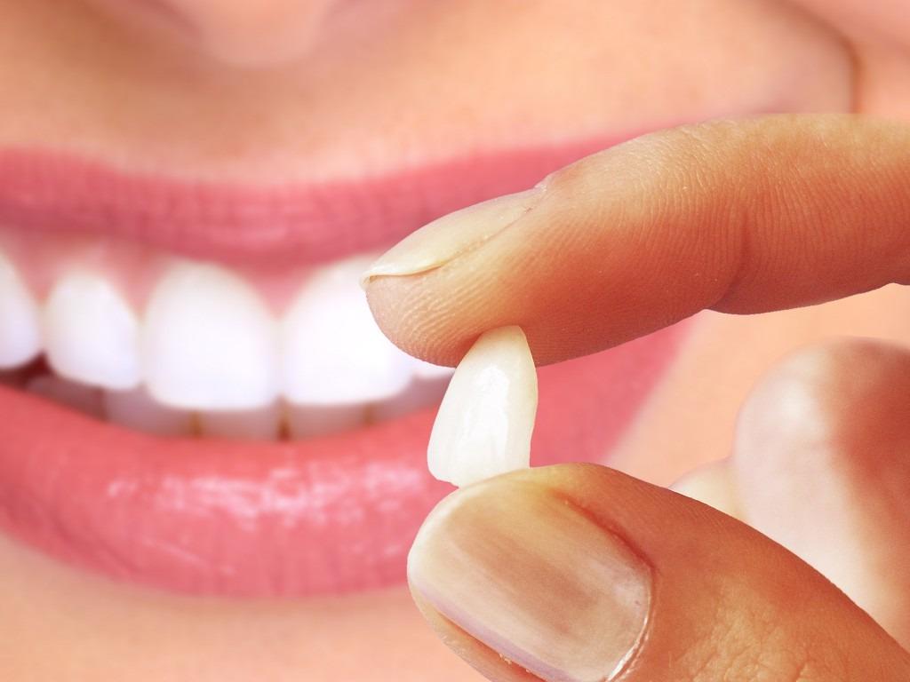 Lentes de contato dentais Flavio Ferraz Curitiba