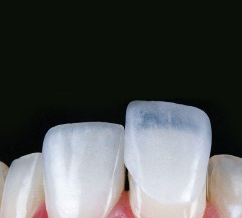 3 mitos sobre lentes de contatos dentais