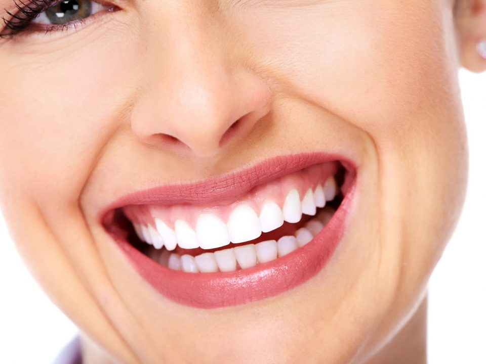 dentes de contato dentais flavio ferraz